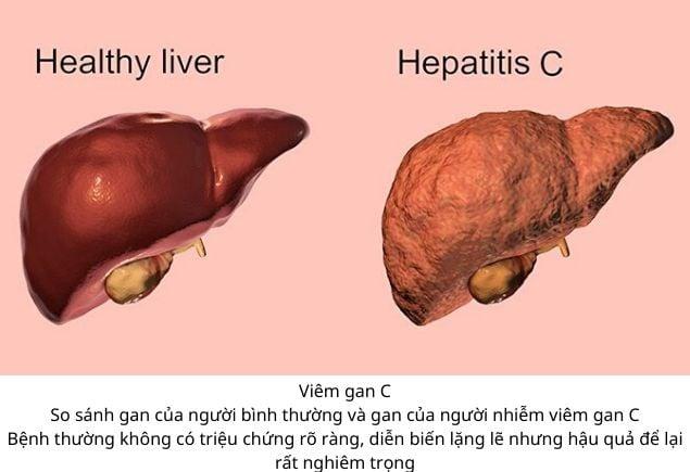 Gan của người bình thường và gan của người bị nhiễm viêm gan C