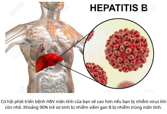 Viêm gan B và những điều cần biết