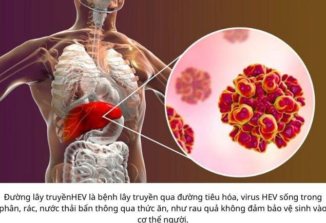 Viêm gan E nguyên nhân dấu hiệu triệu chứng phương pháp điều trị