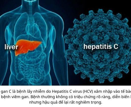 Virus viêm gan C có cấu trúc như thế nào