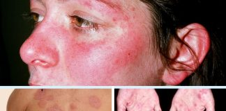 Lupus ban do can benh nguy hiem Nguyen nhan cach dieu tri (1)