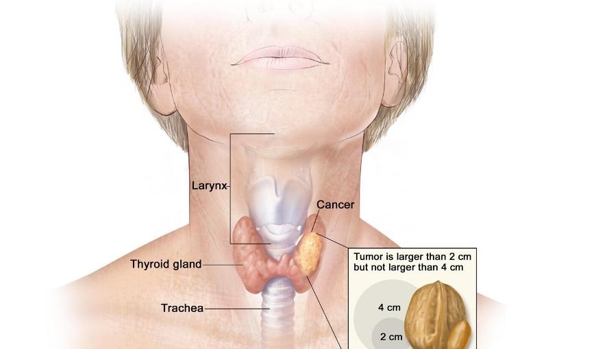 Ung thư tuyến giáp giai đoạn 2