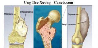 Ung thu xuong Nguyen nhan dau hieu va dieu tri (1)