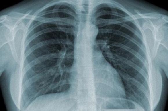 Chẩn đoán và điều trị ung thư phổi