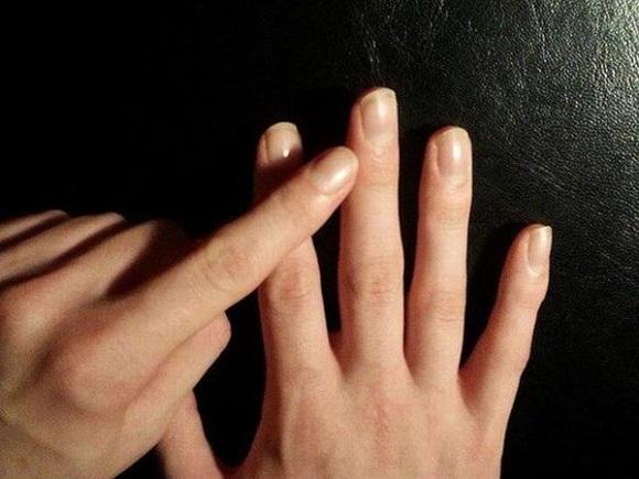 Đầu ngón tay bị sưng và ngứa
