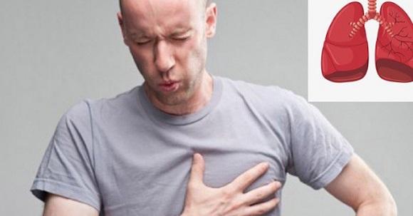 Đau ngực có thể là triệu chứng của ung thư phổi