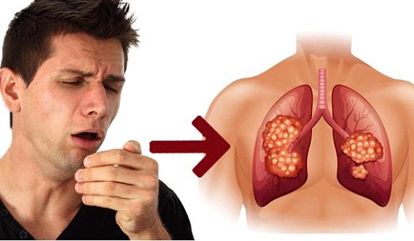 Ho nhiều là triệu chứng ung thư phổi giai đoạn đầu