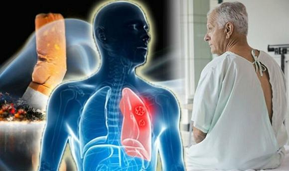 Mắc bệnh ung thư phổi sống được bao lâu