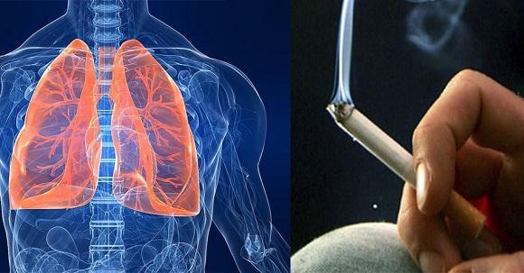 Những người hút thuốc lá có nguy cơ mắc ung thư phổi cao nhất