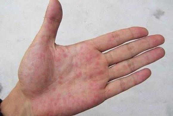 Trên ngón tay xuất hiện những chấm đỏ