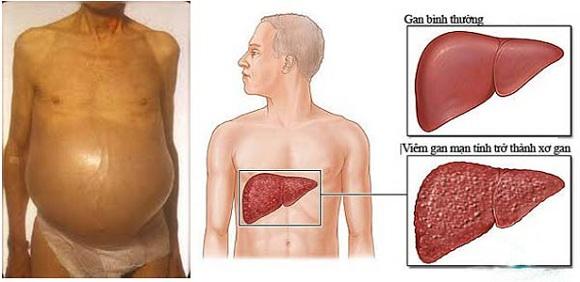 Triệu chứng viêm gan B rõ rệt nhất