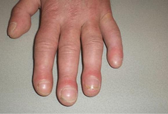 Tự kiểm tra ung thư phổi qua các ngón tay