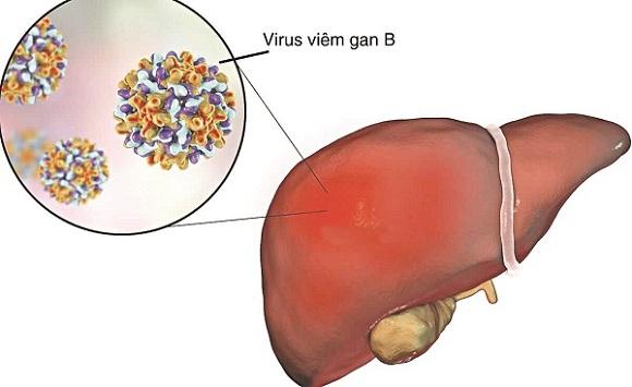Viêm gan siêu vi B là do virus viêm gan B gây ra
