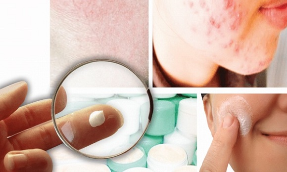Corticoid có tính kháng viêm. Nên làm giảm các dấu hiệu và triệu chứng của tình trạng viêm (2)