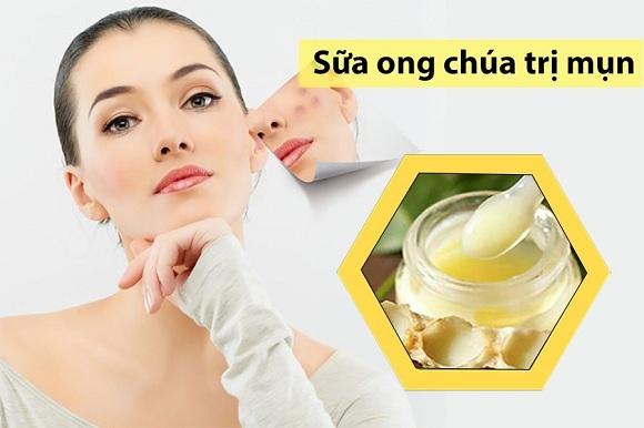 Sữa ong chúa giúp trị mụn hiệu quả (3)